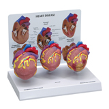 Personalized 3pc Heart Model