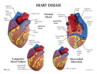 Human 3 Piece Heart Anatomical Model #2550 for Sale ... Vertebrae Labeled