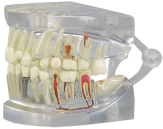 Human Teeth And Jaw Model Clear 2861 For Sale Anatomy Now
