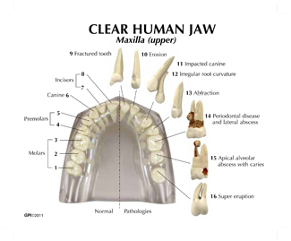 Human teeth and jaw model clear 2861 for sale anatomy now ed card 2 ccuart Images