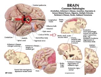 Human Brain Anatomy Model #2900 for Sale | Anatomy Now