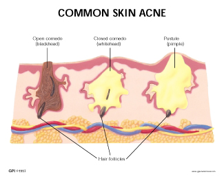 Human Skin Acne Model #3750 for - 52.9KB
