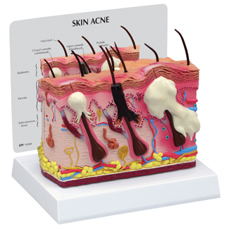 Human Skin And Acne Model 3751 For Sale Anatomy Now