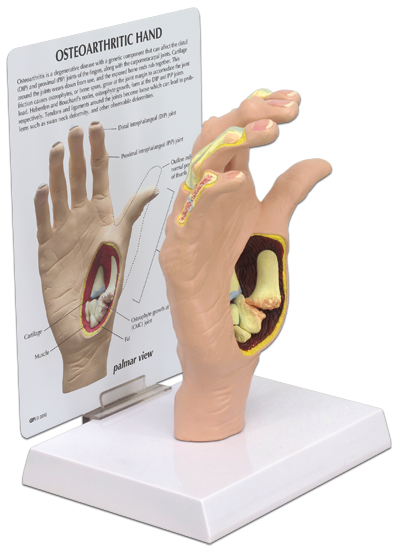 Human Osteorthritis Oa Hand Model 1930 For Sale Anatomy Now