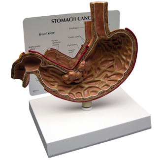 Human Stomach Cancer Model 2001 For Sale Anatomy Now
