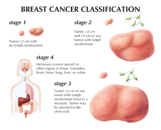 Location of a breast mass